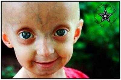 Progeria? Ew